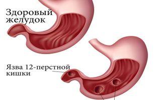 Вздутие и боли в области живота