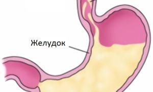 Симптомы и лечение ларингофарингеального рефлюкса