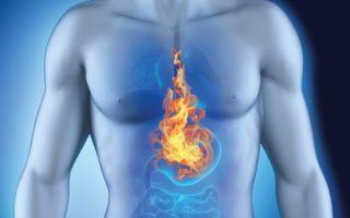 Что нужно знать, если мучает сильная изжога