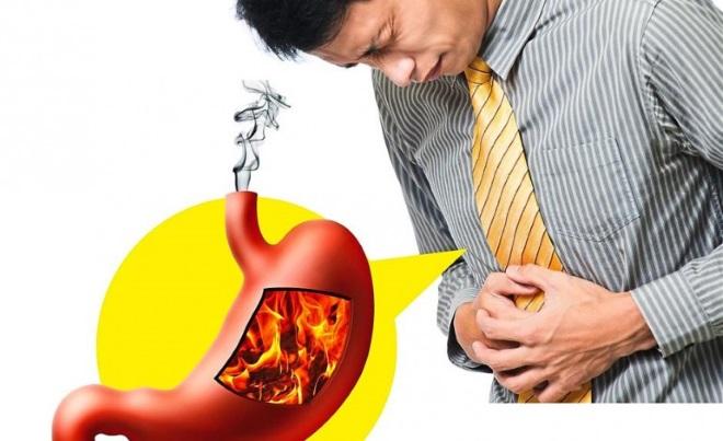Пожар в желудке у мужчины
