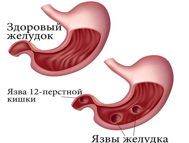 Маалокс – инструкция по применению таблеток: можно ли при беременности, как принимать и что лучше Альмагель или Маалокс