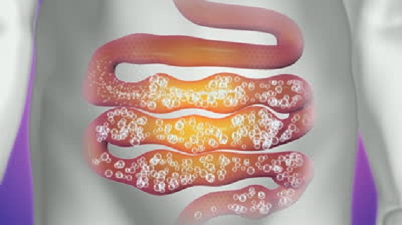 газообразование в кишечнике