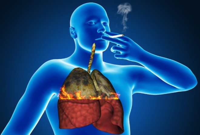 Почему возникает икота во время курения