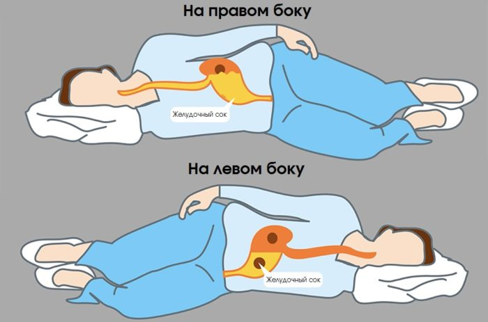 На каком боку лучше спать при изжоге