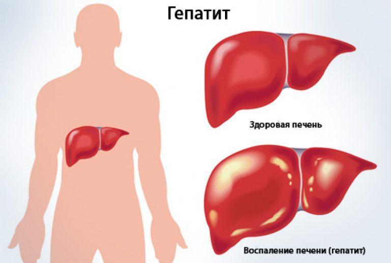 гепатит.jpg